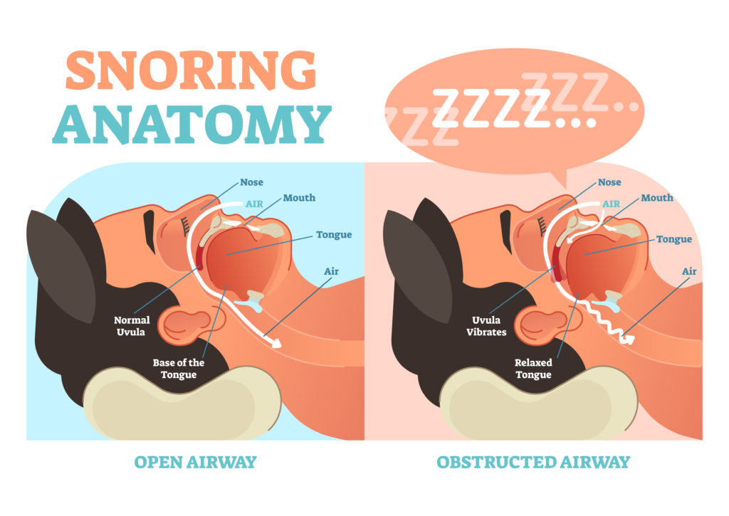Can Nasal Dilators Prevent Snoring?