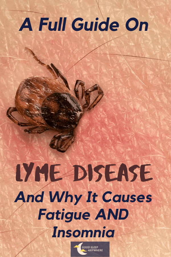 A full guide on Lyme disease